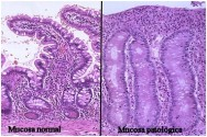mucosa atrofiada